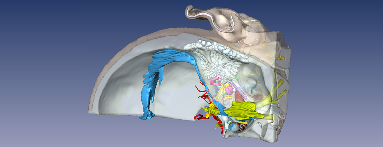 digital image of 3D temporal bone